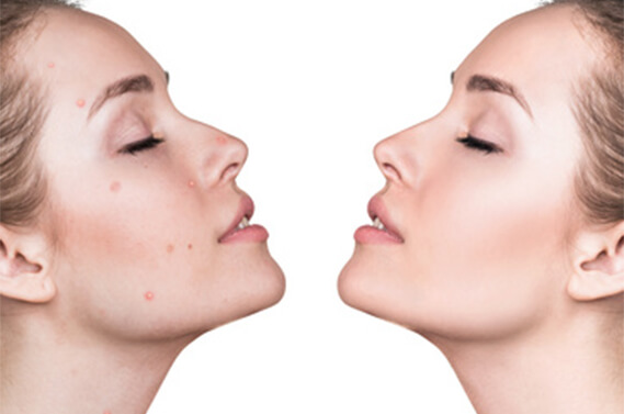 Acne Peel - Shiro Aesthetic Clinic Singapore