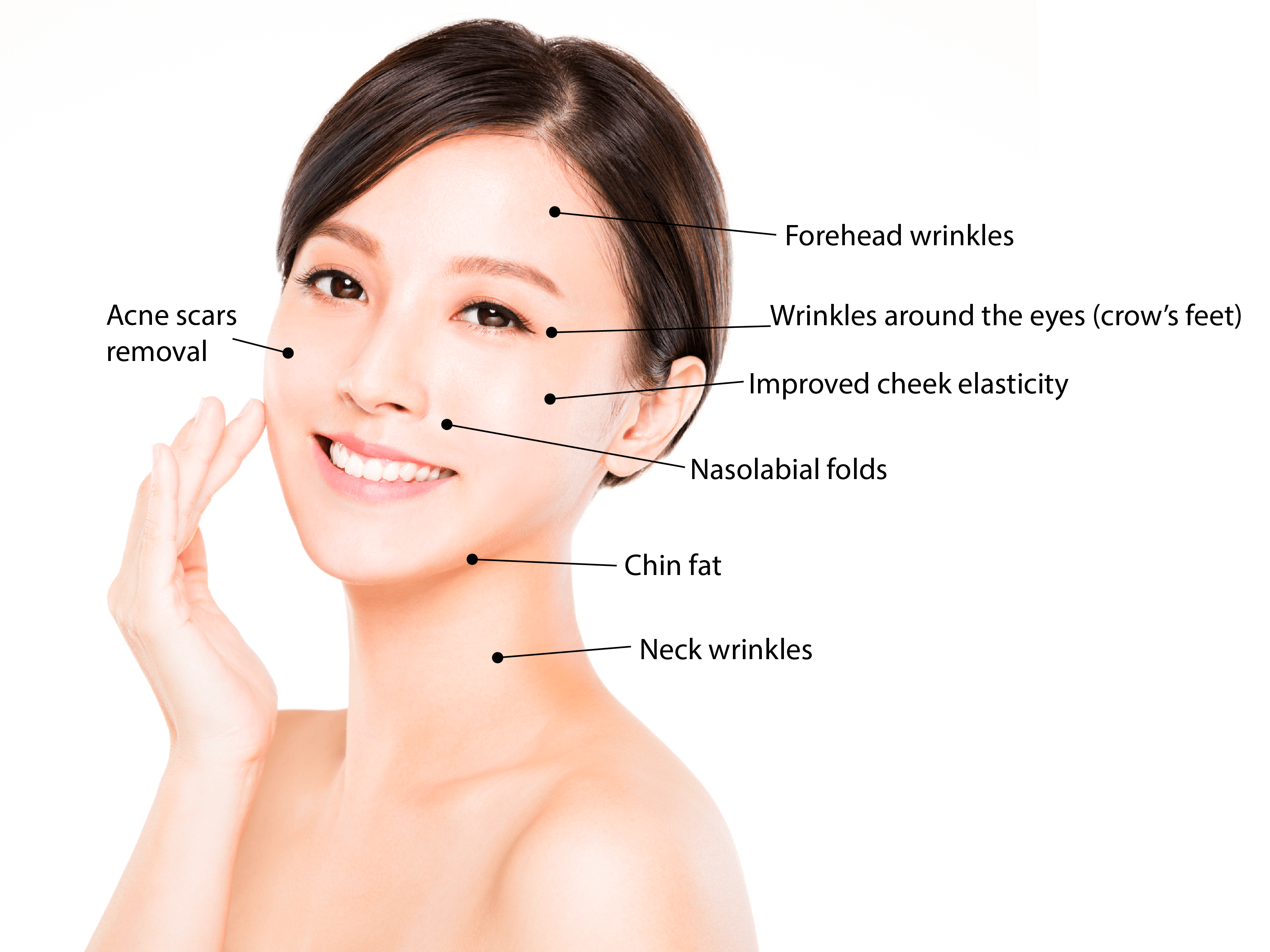 AirJet Acne Scar Facelift Shiro Aesthetic Clinic