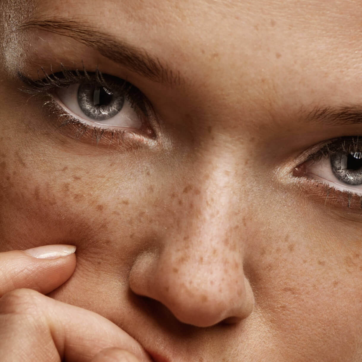 Freckles Pigmentation Laser Treatment Shiro Aesthetic Clinic