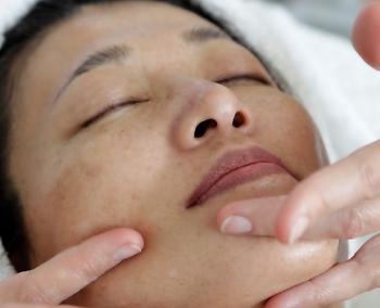 face thread lifts risks complications
